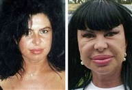 Around the World Social Event Celebrity plastic surgery before and after Lebanon