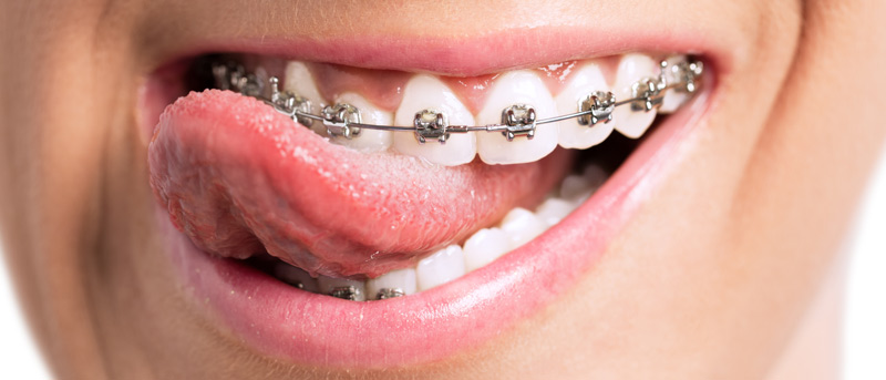 Beiruting Life Style Blog 5 Most Embarrassing Braces